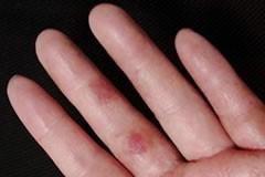 金属アレルギーの危険性